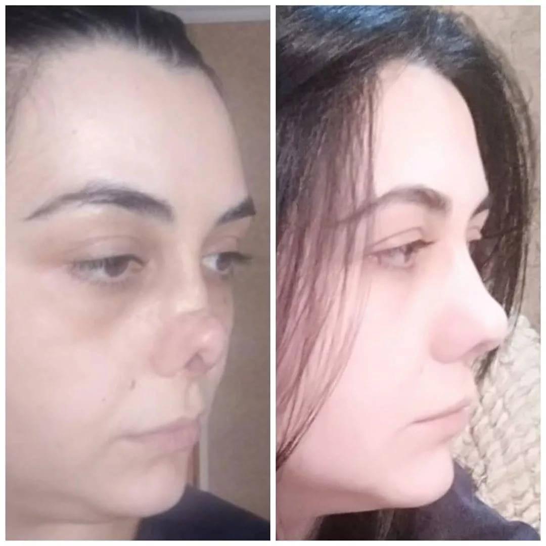 Девушка без носа из тик тока хахадетка: до и после операции